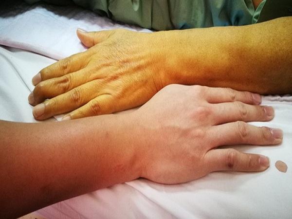 Dấu hiệu nhận biết của bệnh gan để biết cách điều trị sớm