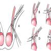 Thắt ống dẫn tinh có ảnh hưởng gì tới sức khỏe