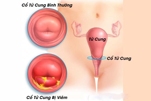 Viêm cổ tử cung là gì?