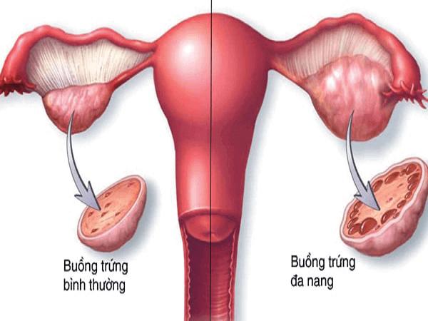 Nguyên nhân chính gây ra buồng trứng đa nang