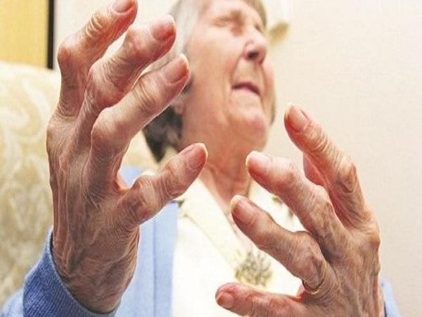 Viêm đa khớp là gì? Nguyên nhân, biểu hiện của bệnh