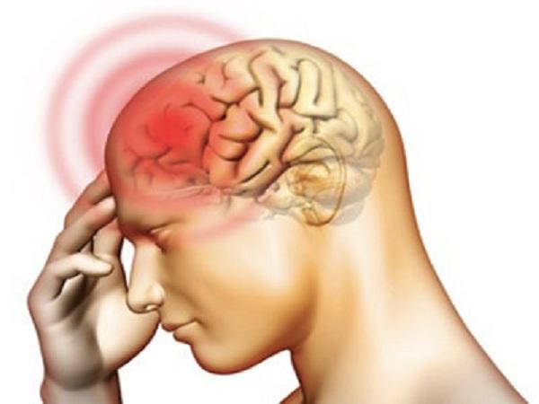 Những biểu hiện bệnh viêm màng não