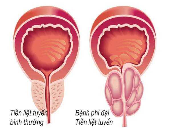 Bệnh phì đại tuyến tiền liệt làm ảnh hưởng đến chất lượng sống của nam giới